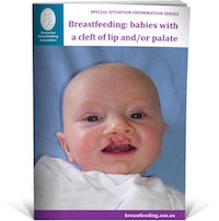Breastfeeding babies with a cleft of lip and or palate